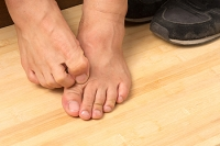 How Do You Know If You Have Developed Athlete's Foot?
