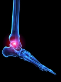 Rheumatoid Arthritis and the Feet