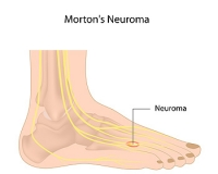 Location of Pain Caused by Morton's Neuroma